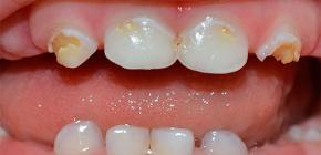 Что важно знать о кариесе молочных зубов у детей раннего возраста