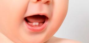 О молочном (временном) прикусе, а также о прорезывании и смене зубов у детей