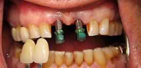 Возможна ли имплантация зубов при пародонтите и пародонтозе?