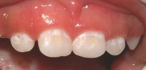 Методы лечения начального кариеса в стадии белого пятна