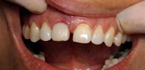 Симптомы отторжения импланта зуба: по каким признакам распознать проблему?