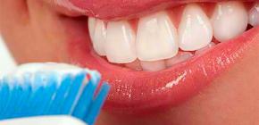 Отбеливающие зубные пасты: как выбрать лучшую и при этом не навредить эмали?