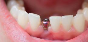 Что входит в имплантацию зубов под ключ и за что придется доплатить отдельно