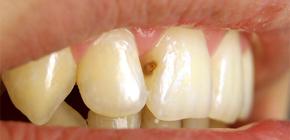 Что делать, если на передних зубах появился кариес