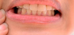 Что можно сделать в домашних условиях для снятия сильной зубной боли