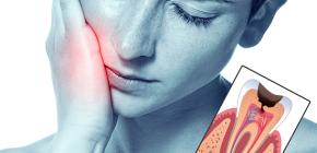 Современные методы лечения пульпита