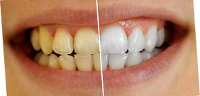 Как можно отбелить зубы в домашних условиях без вреда для эмали