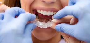 Ортодонтические капы для исправления прикуса