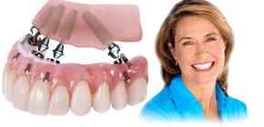 Технологии протезирования зубов All-on-4 и All-on-6: сходства и различия