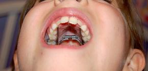 Ортодонтические аппараты для исправления прикуса у детей