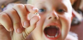 Способы профилактики кариеса у детей