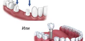 Что лучше: зубной мост или имплант?