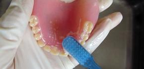 Правила ухода за съемными зубными протезами