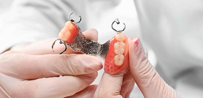 Бюгельные протезы на верхнюю челюсть