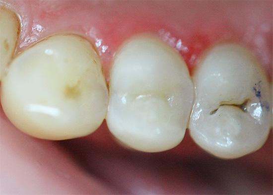А так выглядит уже запломбированный зуб после лечения