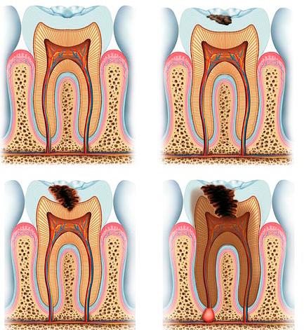 Лечение глубокого кариеса может осложняться из-за близости инфицированных тканей к пульповой камере зуба.