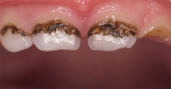 Посеребренные молочные зубы