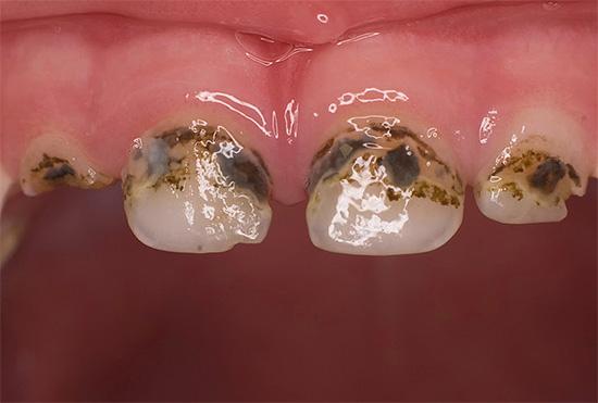 В целом можно отметить, что эффективность процедуры серебрения зубов для предотвращения развития кариеса довольно сомнительна.