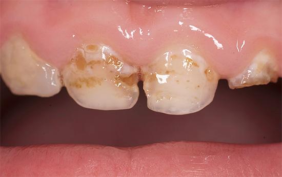 А это уже более глубоко зашедший кариозный процесс: зубная эмаль местами полностью разрушена.