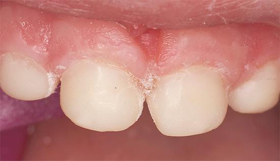 А так выглядят те же зубки, но уже после лечения.