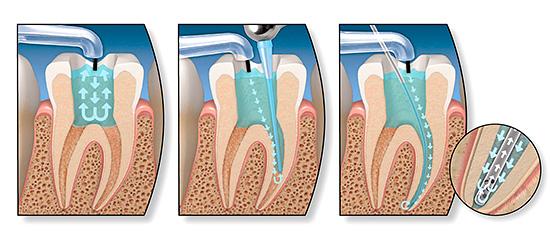 При лечении декомпенсированной формы кариеса часто приходится производить депульпирование (удаление зубного нерва)