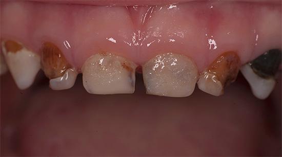 Характерным признаком декомпенсированной формы кариеса является поражение сразу многих зубов, причем степень разрушения может быть от слабо выраженной, до почти полного отсутствия твердых тканей.
