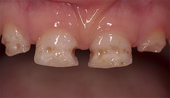 Острый кариес чаще всего развивается у детей с молочныи зубами