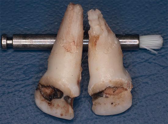 В некоторых запущенных случаях отдельные зубы уже не удается спасти и приходится удалять.