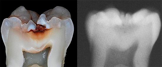 Рентгеновский снимок позволяет выявить кариес в области фиссур лишь на поздних стадиях, когда ткани зуба уже серьезно разрушены.