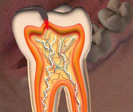 Если фиссурный кариес добрался до пульповой камеры, то в большинстве случаев потребуется удаление зубного нерва.