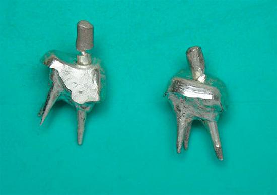 Зубные культевые вкладки