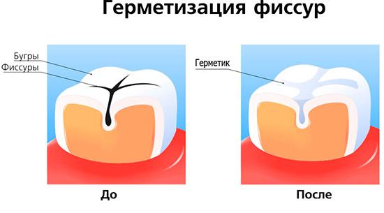 Эффективным методом профилактики фиссурного кариеса является герметизация фиссур с помощью специальных герметиков.
