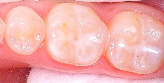 На фото показаны зубы с загерметизированными фиссурами