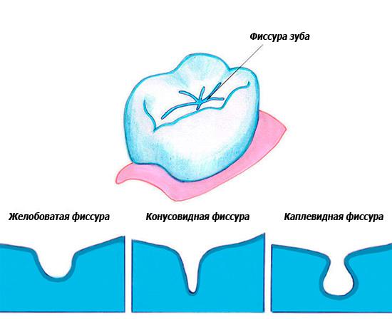 Фиссуры могут иметь разную форму, однако их особенность состоит в том, что из таких ямок весьма сложно вычищаются остатки пищи и зубной налет.