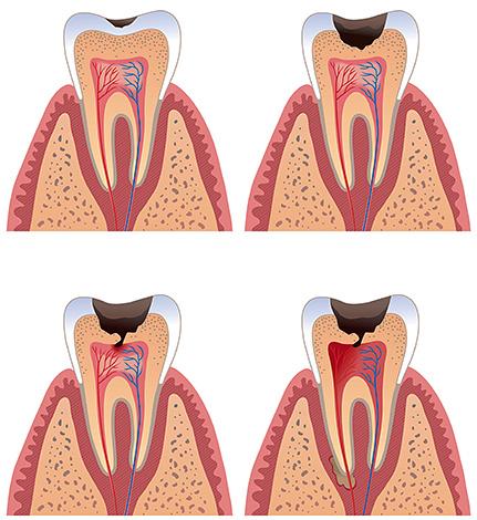 Болевые ощущения могут начаться тогда, когда кариозный процесс доберется до дентина и особенно - до пульпы.