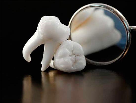 Согласно Осеннему соннику, вырывание зубов может предвещать предстояющую физическую боль в реальной жизни.