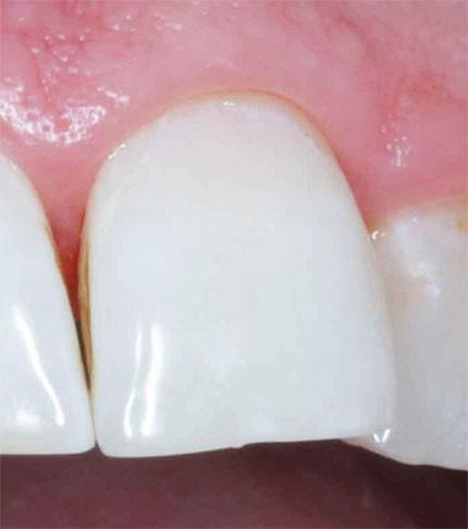 А так выглядит зуб после лечения по технологии ICON