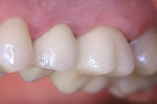 При грамотной профилактике кариеса в домашних условиях удается вполне надежно защитить зубы от разрушения.