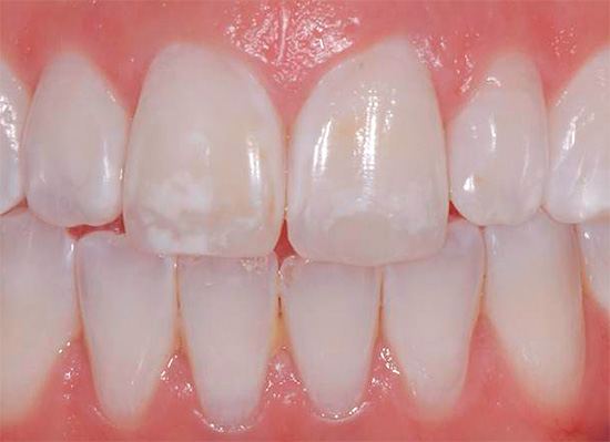 В ряде случаев применение в домашних условиях зубных паст с фтором может быть вредным, например, при флюорозе (на зубах появляются белые пятна из-за избытка этого элемента в организме).