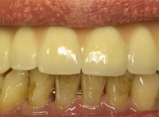 Желтые зубы курильщика
