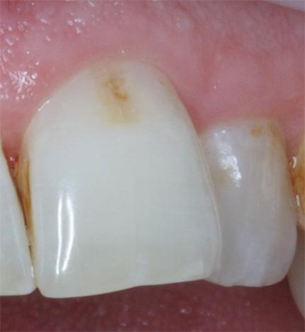На фото показан пример зуба с начальным кариесом до лечения