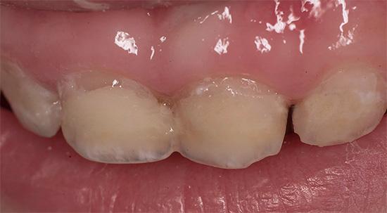 Принимать меры по защите от кариеса нужно с появления первого молочного зуба, не дожидаясь, когда начнется его разрушение...