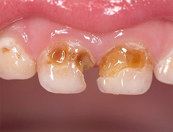 Рассматриваемые далее способы защиты зубов будут особенно полезны тем, у кого уже наблюдаются кариозные поражения и кто хочет остановить их развитие.