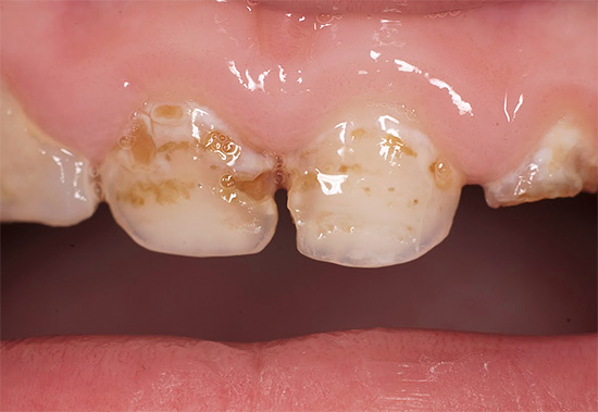 При плохой гигиене полости рта зубная эмаль может разрушаться в ряде случаев очень быстро, особенно у молочных зубов.