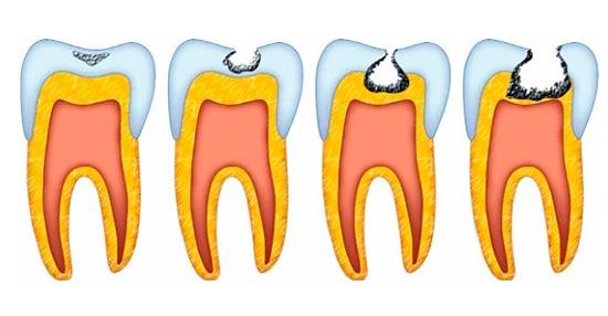 Стадии кариеса - видно, что дентин зуба затрагивается лишь после серьезного разрушения эмали