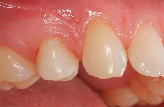 Если даже кажется, что с зубами не все так плохо, но вы чувствуете боль от горячего или холодного - возможно, речь идет о кариесе дентина