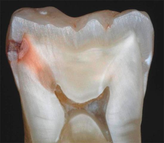 На разрезе пораженного кариесом зуба хорошо видно, что инфекция проникла далеко вглубь дентина, к самой пульпе