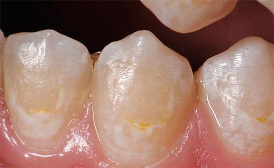 Если кариес находится лишь в начальной стадии развития и затронул лишь эмаль зуба, лечение может быть проведено консервативными методами.