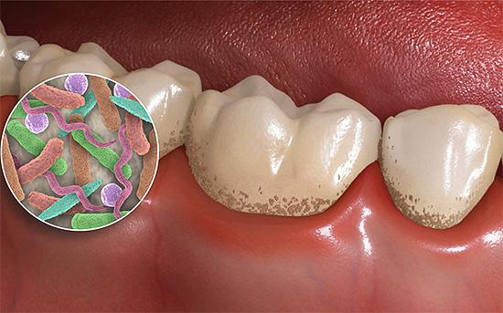 Бактерии в зубном налете образуют органические кислоты, которые способствуют деминерализации эмали зуба.