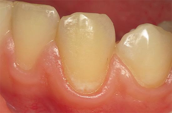 Многие не обращают внимания на появление белого или мелового пятна на зубе, хотя это является тревожным признаком начала кариеса эмали.